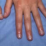 Đoán sức khỏe qua tình trạng móng tay - Ảnh 1