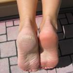 Xử lý nứt gót chân - Ảnh 1